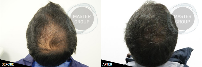 BEFORE AND AFTER: CONFIRM OUR SUCCESS